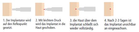 Implantat-Akupunktur Behandlung